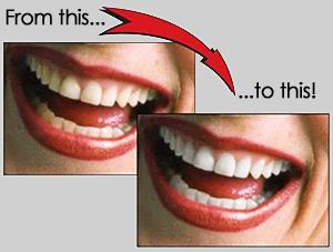 Teeth Whitening Teeth Bleaching Millennium Tanning Led Teeth